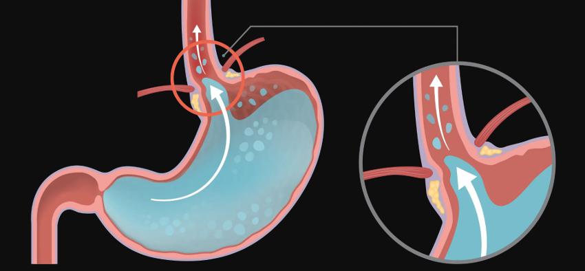 Que es y como puedo controlar el reflujo gastroesofagico